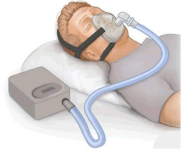 Continuous positive airway pressure (CPAP) therapy is a common treatment for obstructive sleep apnea. It includes a small machine that supplies a constant and steady air pressure, a hose, and a mask or nose piece.